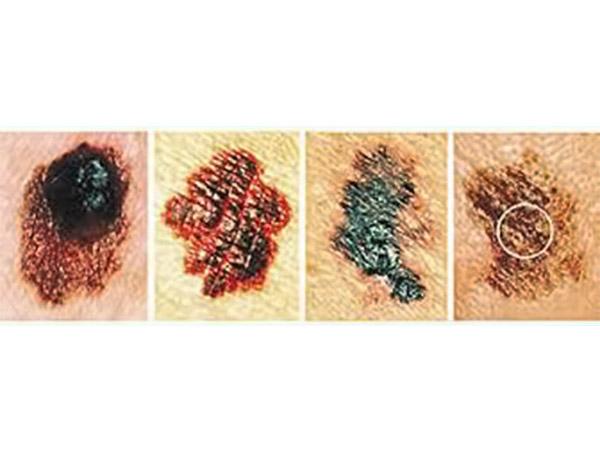 ec9a78b0f805 Κακοήθεις – Καρκίνος Δέρματος